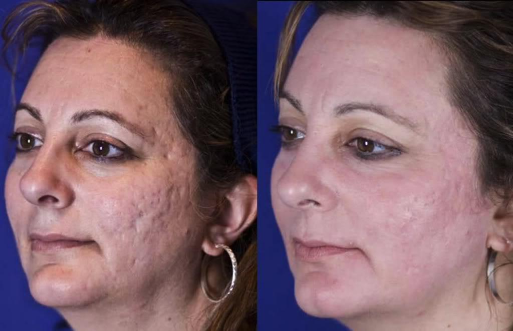 Rejuvenation And Fractional Co2 Laser Skin Treatment For