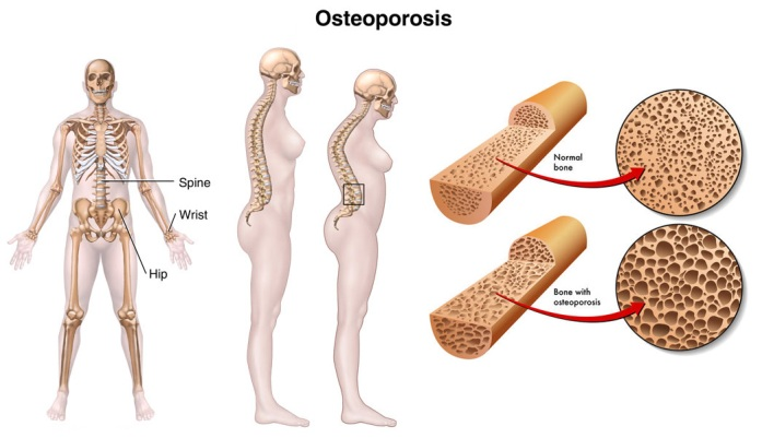Osteoporosis Silent Disease Which Attacks Bones Mercilessly