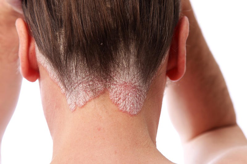 Treatment, Symptoms and Recommendations for Psoriasis