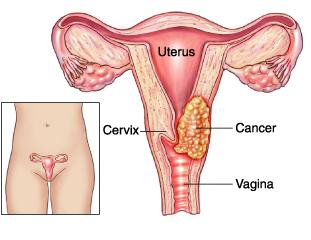 cervix cancer